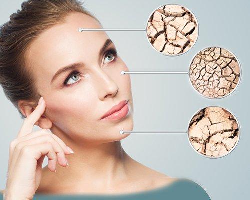 راهکارهایی ساده برای تشخیص نوع پوست