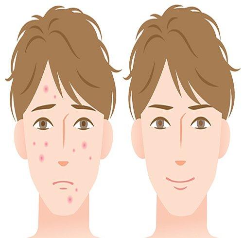 تفاوت انواع جوش صورت، علل ایجاد و راه درمان آنها