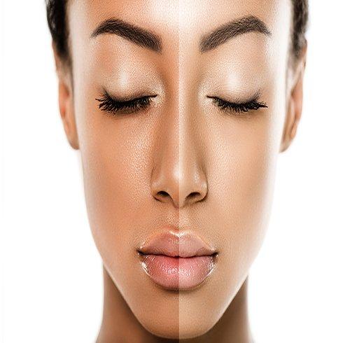 راهکارهایی ساده برای داشتن پوستی شفاف